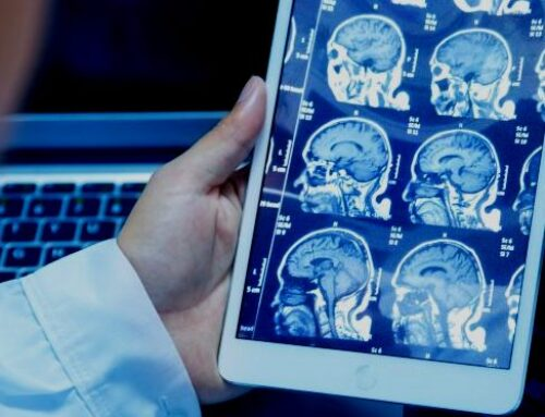 10 Reasons You Might Need a CT Scan