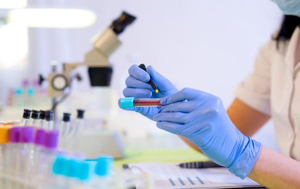pathology labs in pune